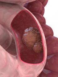 colon-cancer.jpg