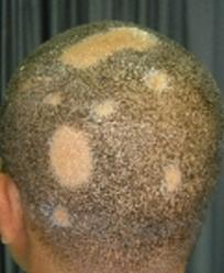 Alopecie 1