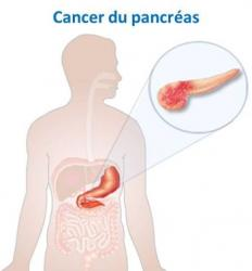 Cancer pancreas image 1