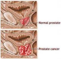 Cancer prostate 1