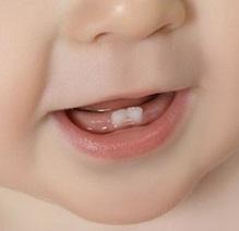 Dents 1