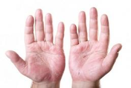 Eczema aux mains