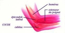 Epicondylite 1