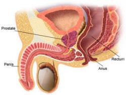 Prostatite 2