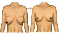 Ptose mammaire 1