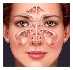 symbolique de la sinusite
