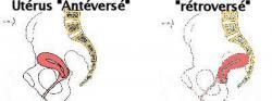 Uterus retroverse 1
